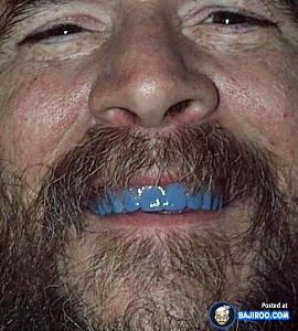 Click image for larger version  Name:funny-teeth-weird-pics-images-free-funny-people-with-blue-tooth-teeth-pics-images-14.jpg Views:63 Size:183.0 KB ID:12148