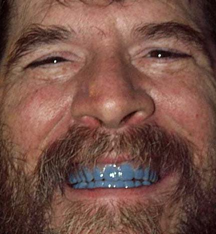 Click image for larger version  Name:blueteeth6.jpg Views:20 Size:37.3 KB ID:16727
