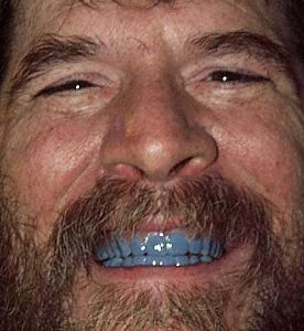 Click image for larger version  Name:blueteeth6.jpg Views:32 Size:37.3 KB ID:16727